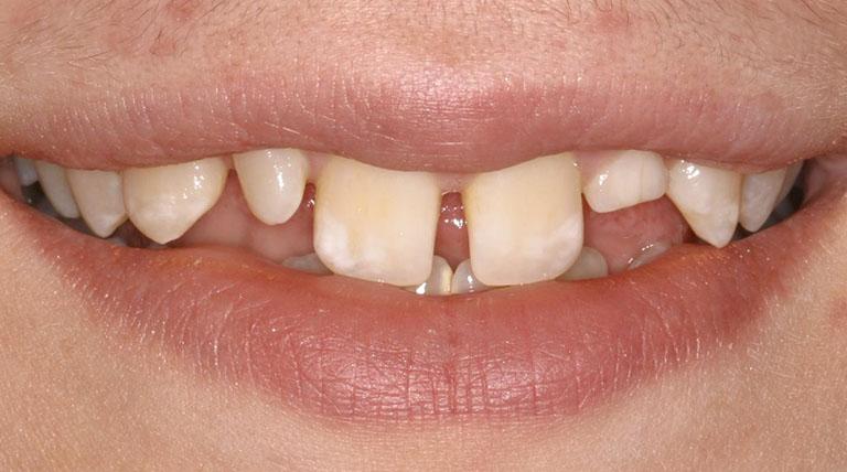 niềng răng thưa có cần nhổ răng không