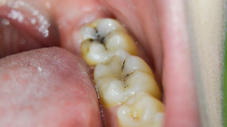 trám răng hàm dưới