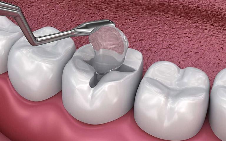 trám răng hàm giá bao nhiêu
