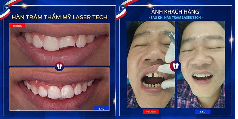 trám răng thẩm mỹ tại hà nội