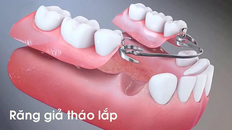 khi nào cần trồng răng