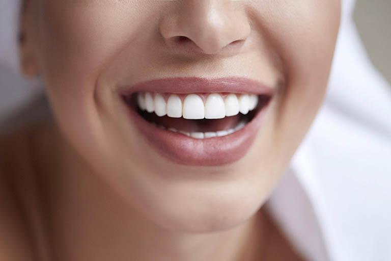 Chi phí trồng răng