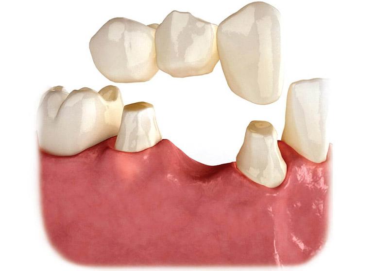 có nên trồng răng giả cố định