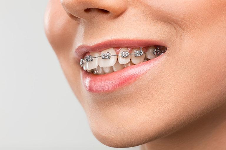 Trồng răng giả có niềng răng được không