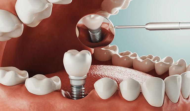 trồng răng giả vĩnh viễn giá bao nhiêu