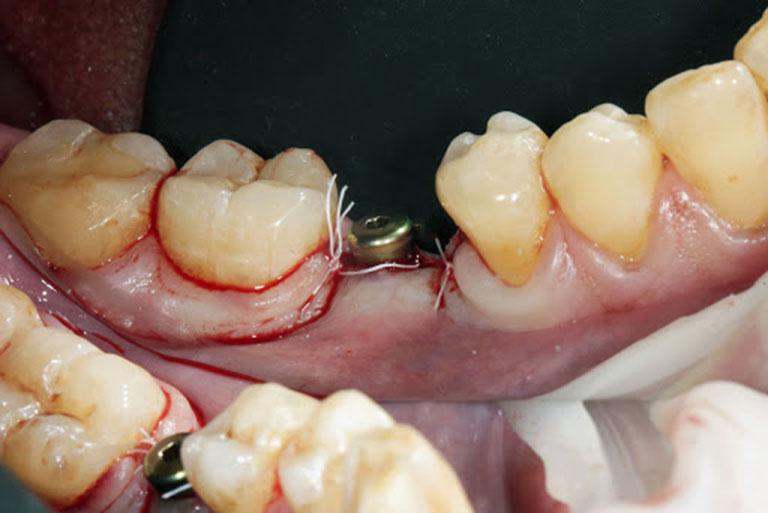 biến chứng trồng răng implant