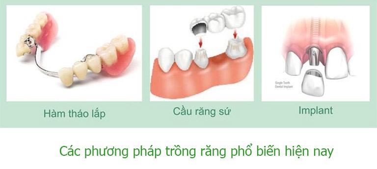 Trồng răng là gì