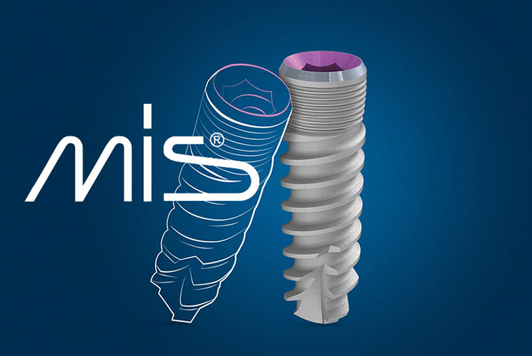 Trụ Implant MIS của Đức