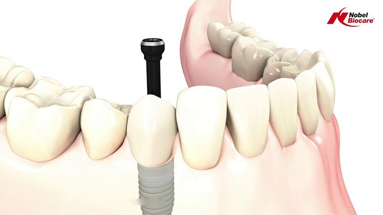 giá trụ implant nobel biocare