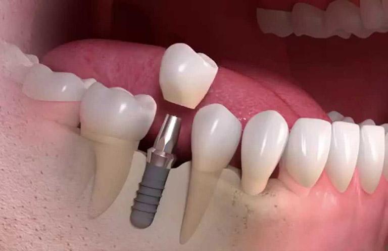 trụ Implant Straumann