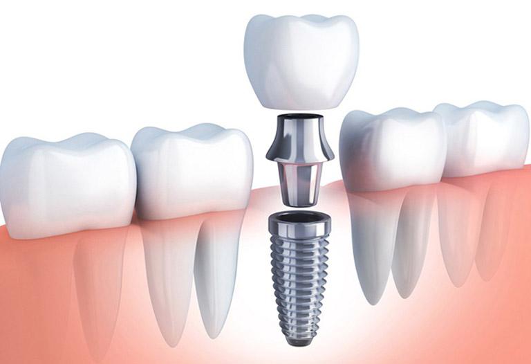 trụ implant loại nào tốt