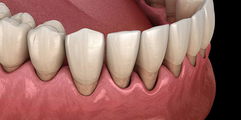 những trường hợp không nên niềng răng