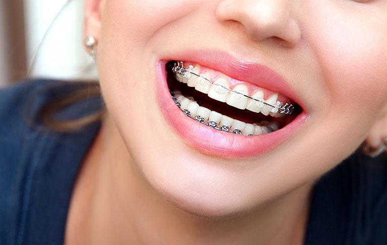 Trường hợp không nên niềng răng