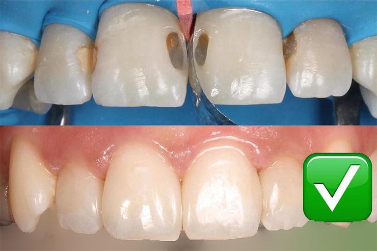 những biến chứng sau khi bọc răng sứ