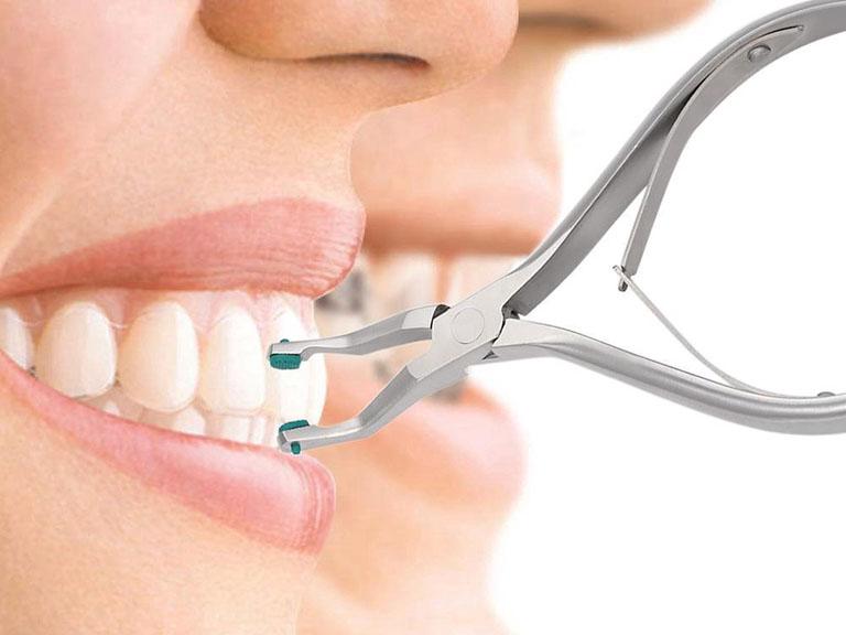 Răng bọc sứ bị chảy máu chân răng