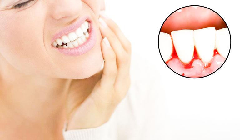 Bọc răng sứ bị chảy máu chân răng