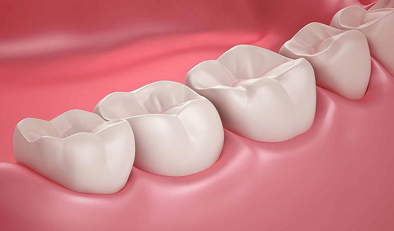 Có nên bọc răng sứ cho răng hàm không