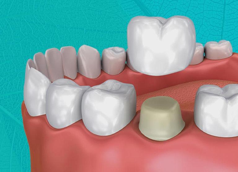Bọc răng sứ có ảnh hưởng tới ăn uống