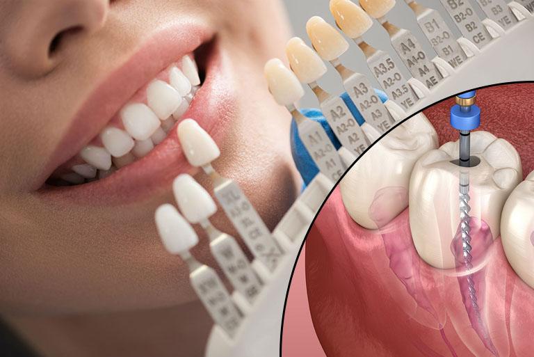 Bọc răng sứ có cần phải lấy tủy không
