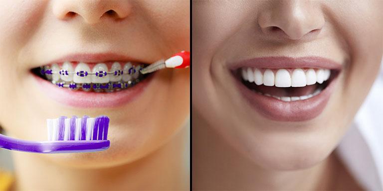 Đã bọc răng sứ có niềng răng được không