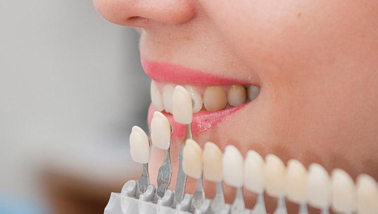 Bọc răng sứ có gây hôi miệng không