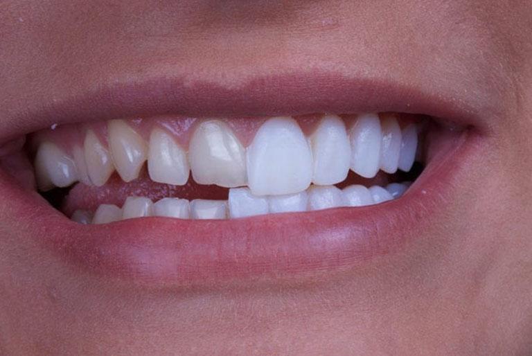 bọc răng sứ không mài
