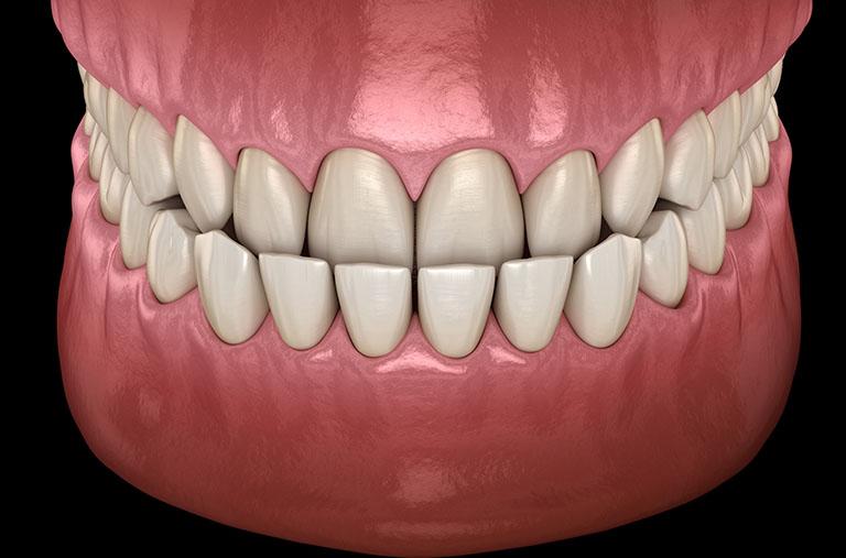 Bọc răng sứ khớp cắn ngược