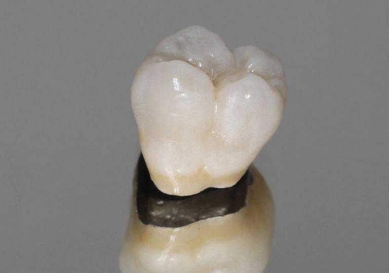 bọc răng sứ kim loại thường có tốt không