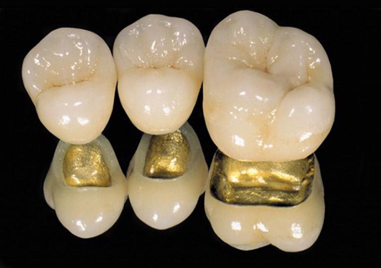bọc răng sứ loại tốt nhất giá bao nhiêu