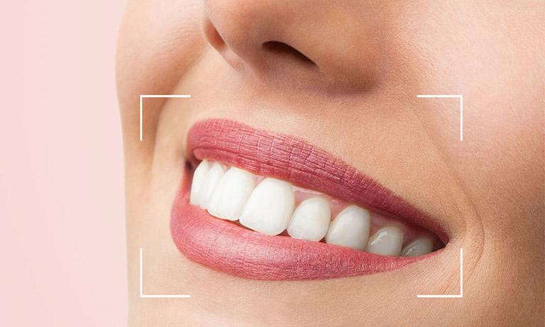 bọc răng sứ loại nào tốt nhất hiện nay