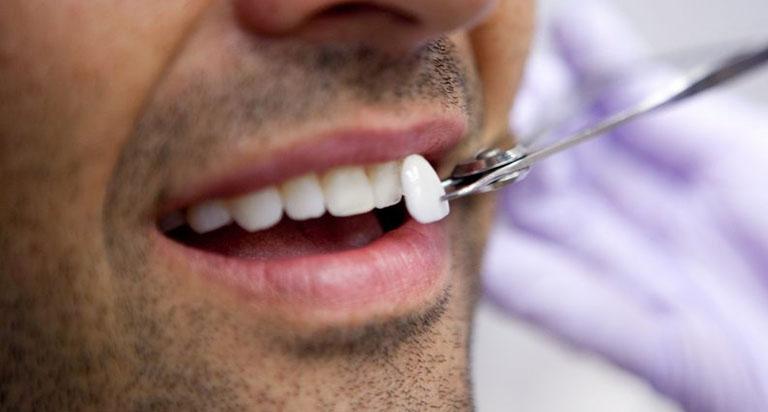 công nghệ bọc răng sứ majestic nano 5k