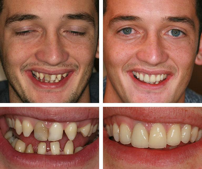 có nên bọc răng sứ nguyên hàm không