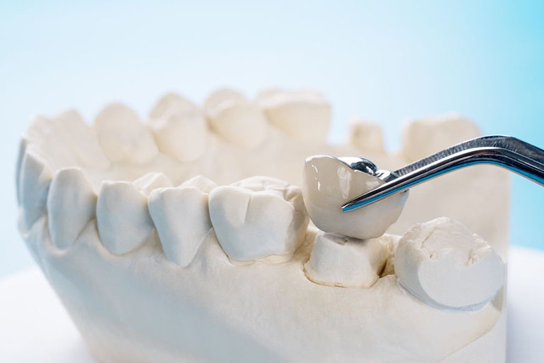 quy trình bọc răng sứ cho răng sâu