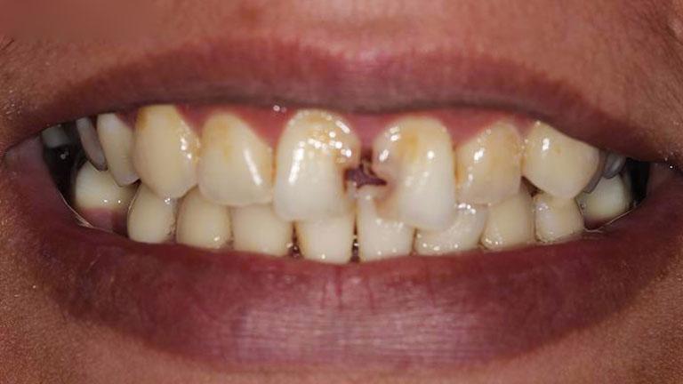 có nên bọc sứ răng cửa không