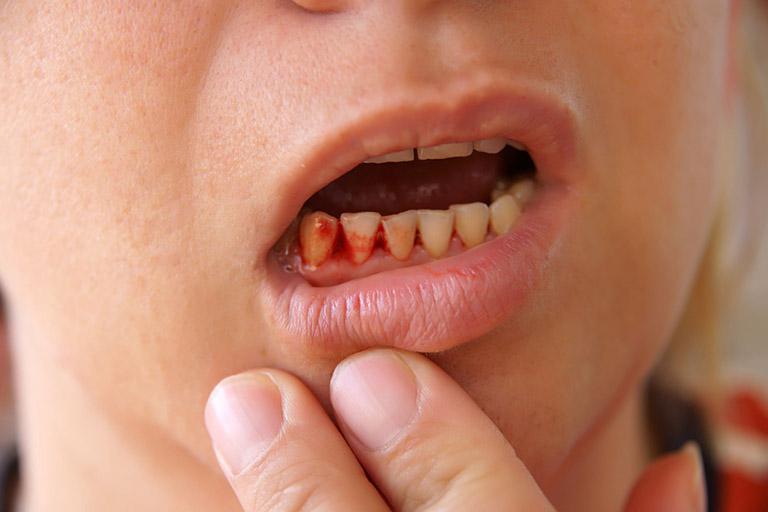 Cạo vôi răng bị chảy má
