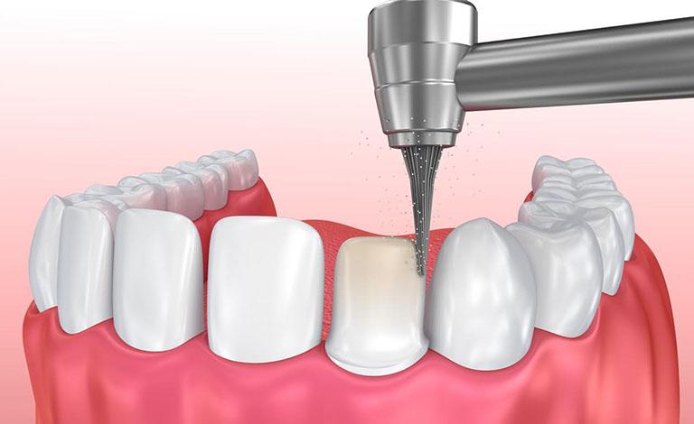 Mài răng khi bọc răng sứ có đau không