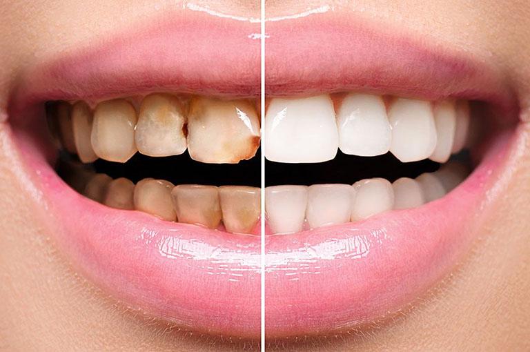 mặt dán sứ veneer không mài răng