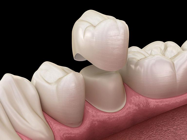 nên dán răng sứ hay bọc răng sứ