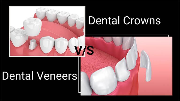 Nên chọn dán sứ Veneer hay bọc răng sứ