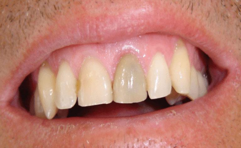 Răng cửa bị sâu có bọc sứ được không