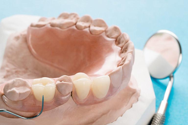 Răng giả tháo lắp nhựa dẻo