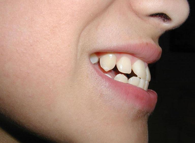 Răng hô nên niềng hay bọc sứ