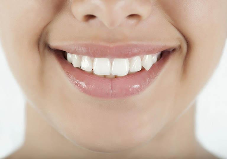 Răng khểnh có bọc sứ được không