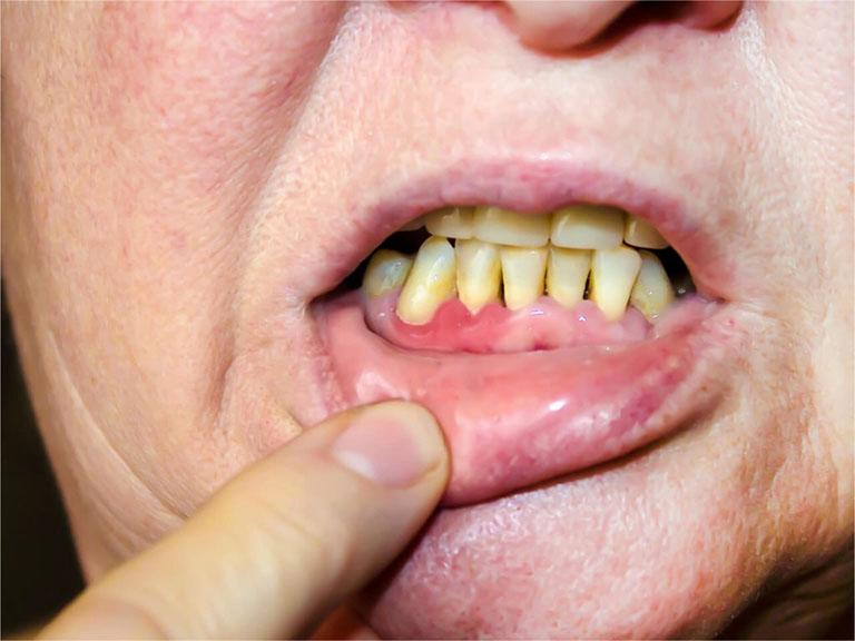 nguyên nhân răng lung lay