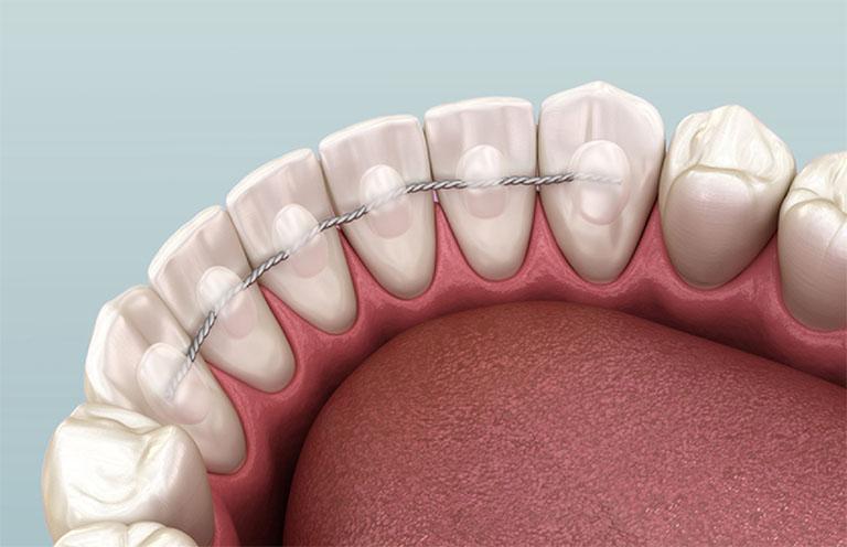 răng bị lung lay làm sao để chắc lại