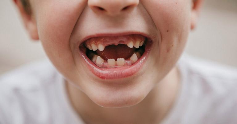 Răng mọc lộn xộn nguyên nhân