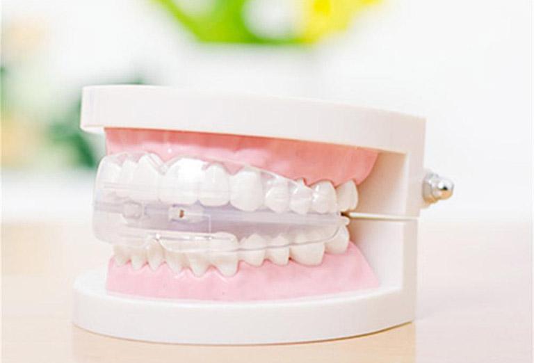 răng mọc lộn xộn phải làm sao
