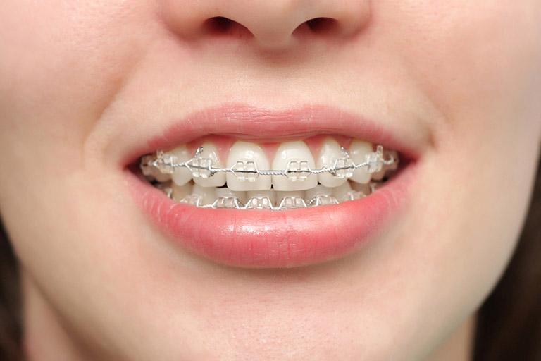 Răng mọc lộn xộn nên niềng hay bọc sứ
