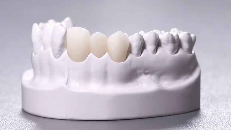 Răng sứ Cercon có mấy loại