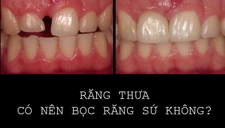 Răng thưa có nên bọc răng sứ không